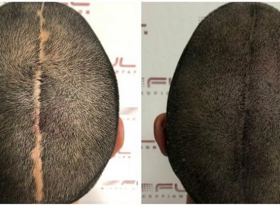 Как мужчине скрыть шрамы, повреждения кожи, рубцы на голове: микропигментация волос — решение вопроса