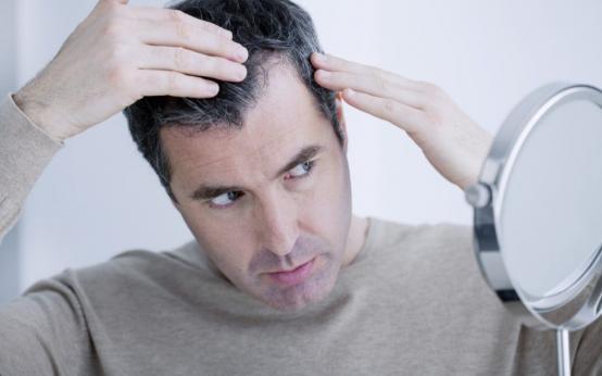 Почему выпадают волосы у мужчин? Что делать при выпадении волос? Основные причины и способы борьбы