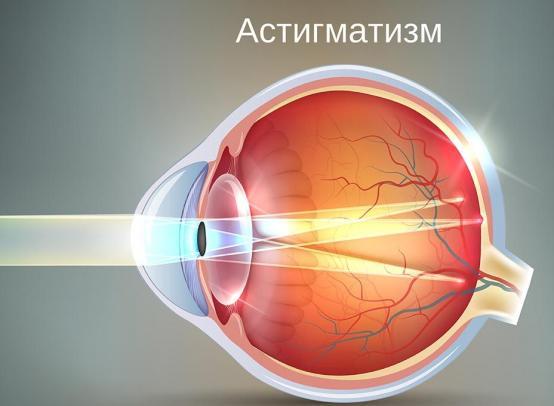Нарушение зрения — астигматизм, что это? Причины, симптомы, лечение.