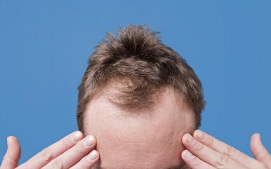 Как и чем лечить облысение у мужчин: эффективные средства и процедуры от выпадения волос