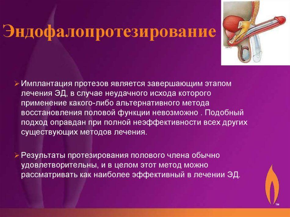 Эндофаллопротезирование