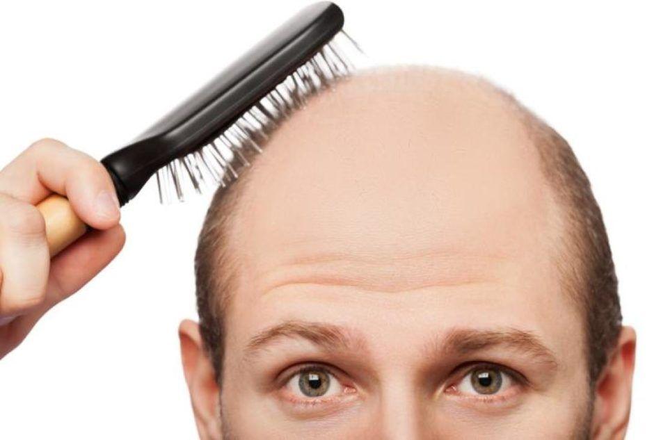 Алопеция у мужчин: причины и лечение мужского облысения