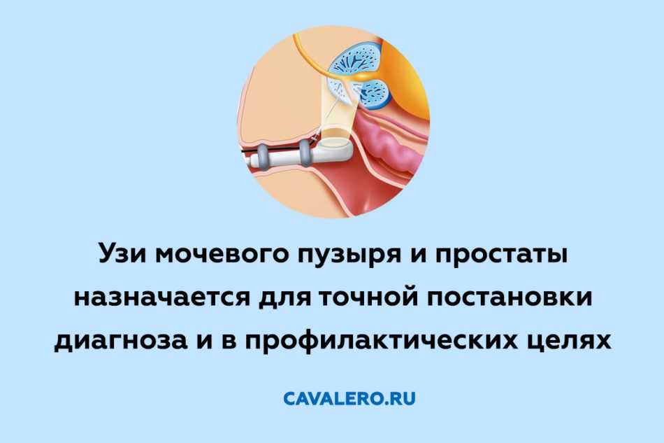 УЗИ простаты и мочевого пузыря у мужчин
