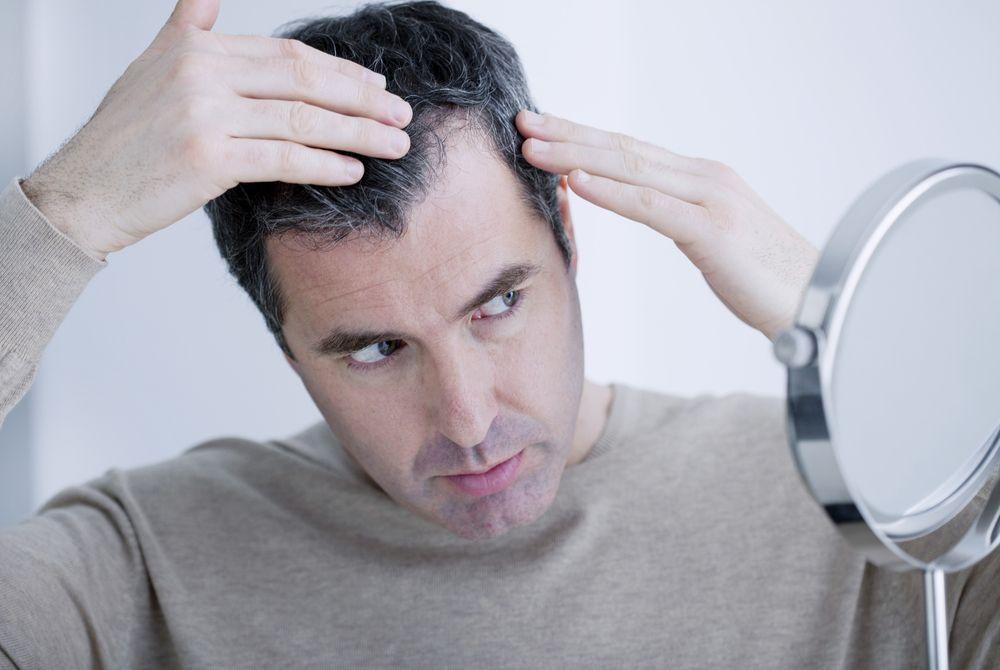 Выпадение волос у мужчин: причины, виды, нормывыпадения, средства против выпадения волос на голове