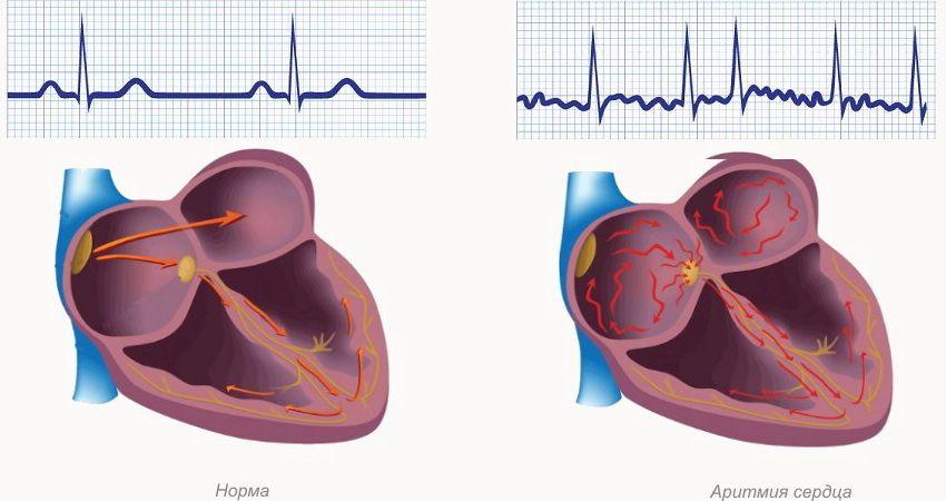 Признаки аритмии сердца
